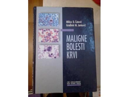 Maligne bolesti krvi - Čolović Janković
