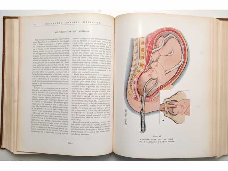 ATLAS OF OBSTETRIC COMPLICATION