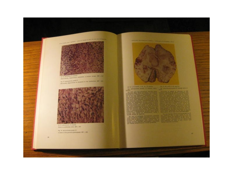 ATLAS OF TUMORS OF THE CENTRAL NERVOUS SYSTEM ...