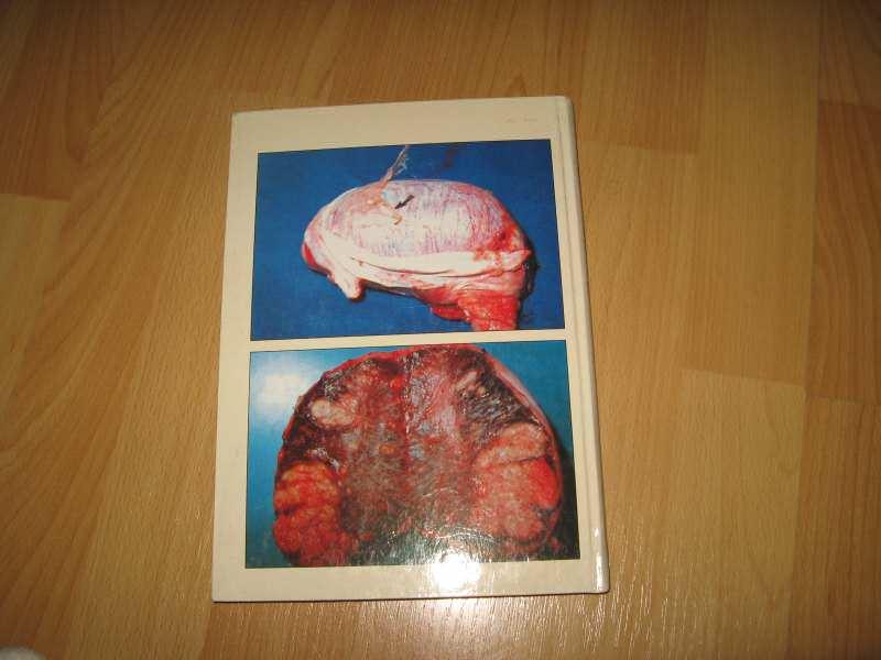 Bruceloza svinja