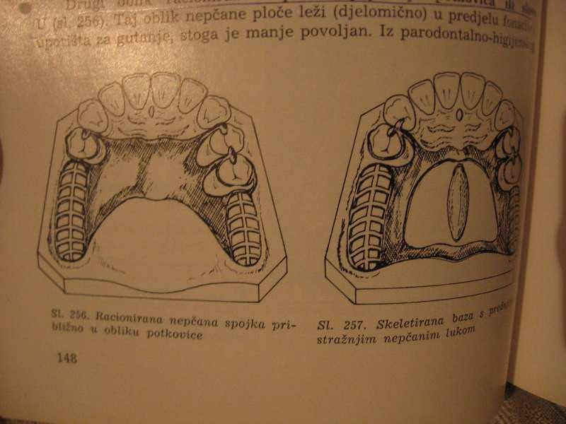 Djelomicna proteza, Stomatoloska protetika 2