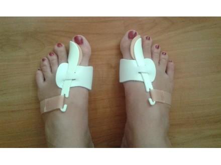 Korektor za čukljeve - ortopedsko pomagalo