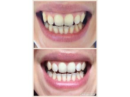 Pasta za izbeljivanje zuba AP24