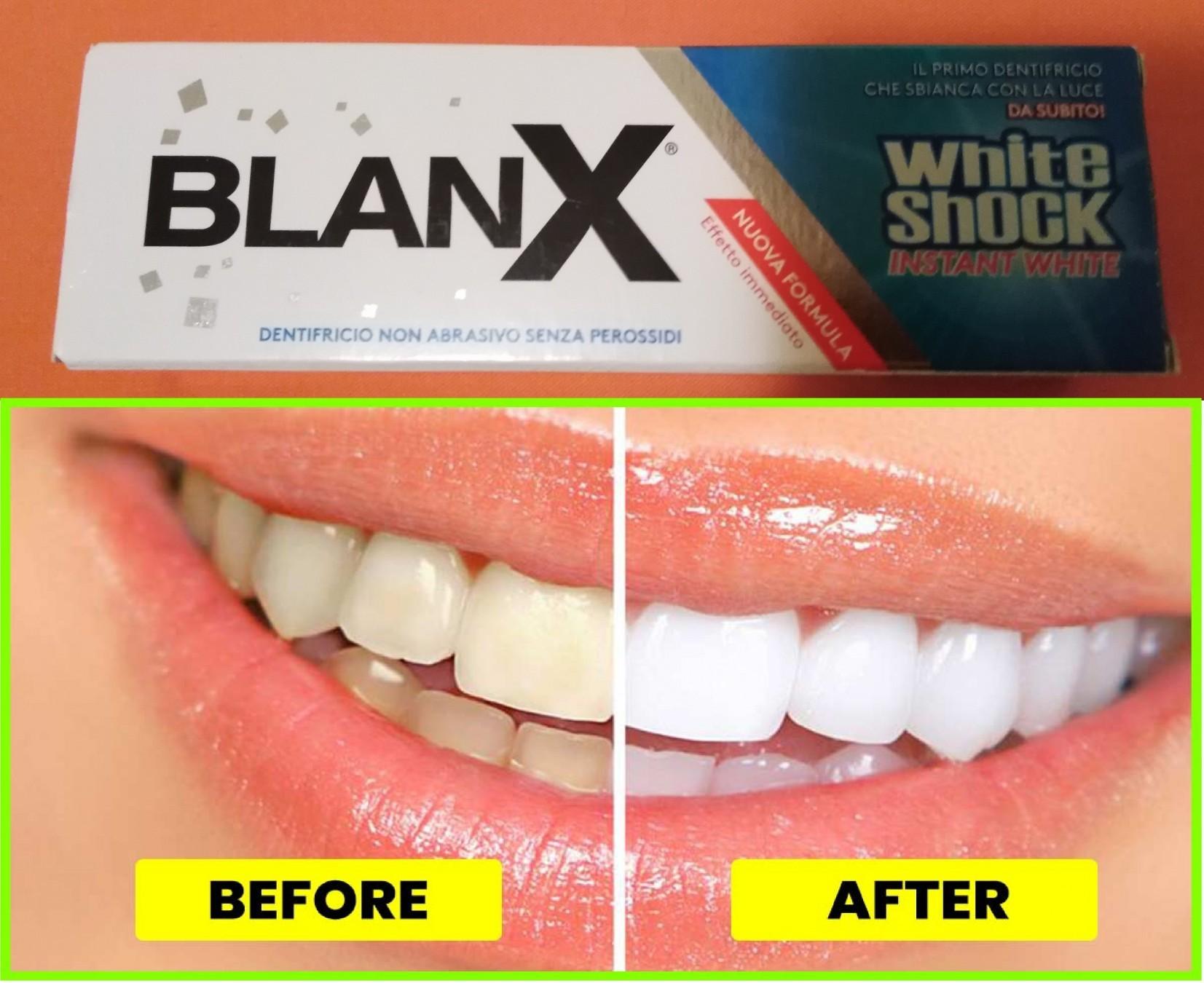 Trake za beljenje zuba iskustva
