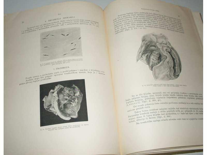 Specijalna  patoloska morfologija - Saltykow