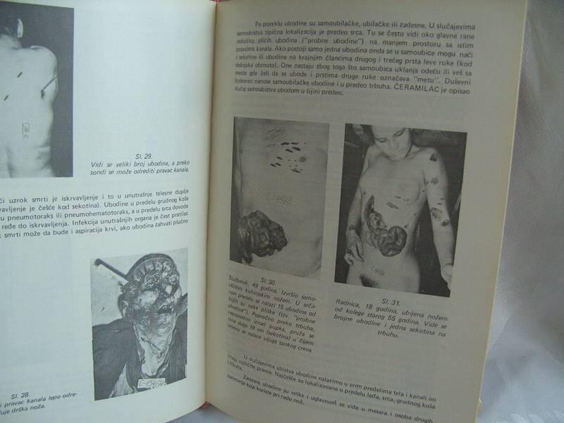 Sudska medicina, Mihajlo Lukić, Samuilo Pejaković