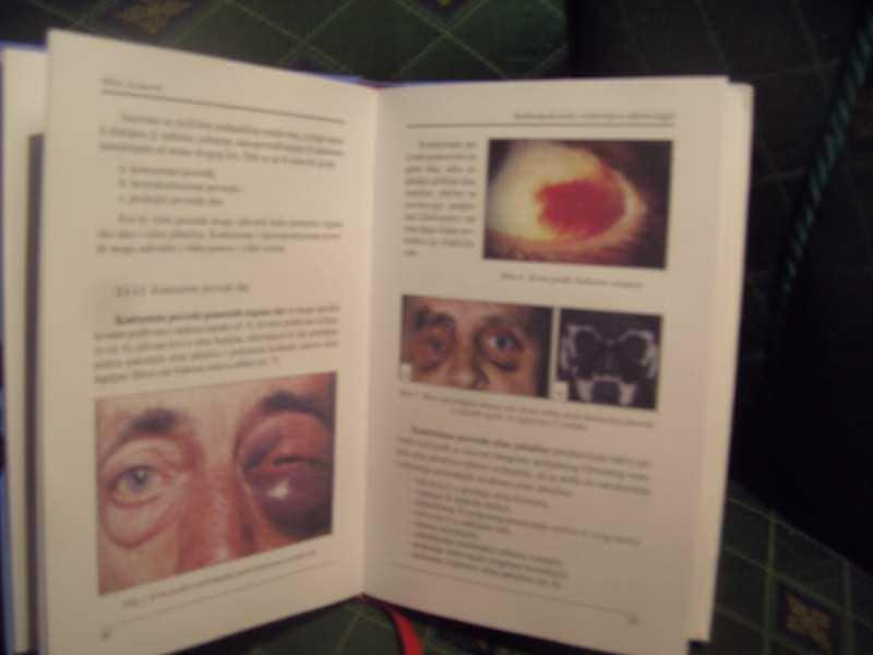 Sudsko medicinsko veštačenje u oftalmologiji, Miloš