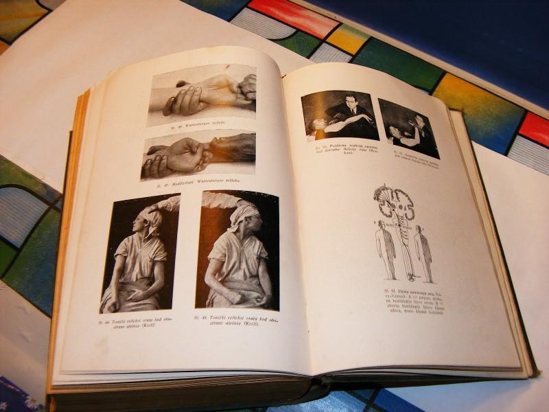 Živčane bolesti-dijagnostika i terapija, Ivo Glavan