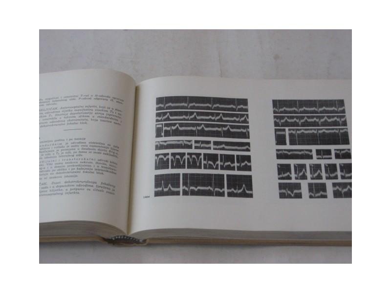me - ELEKTROKARDIOGRAFIJA - uvod + atlas